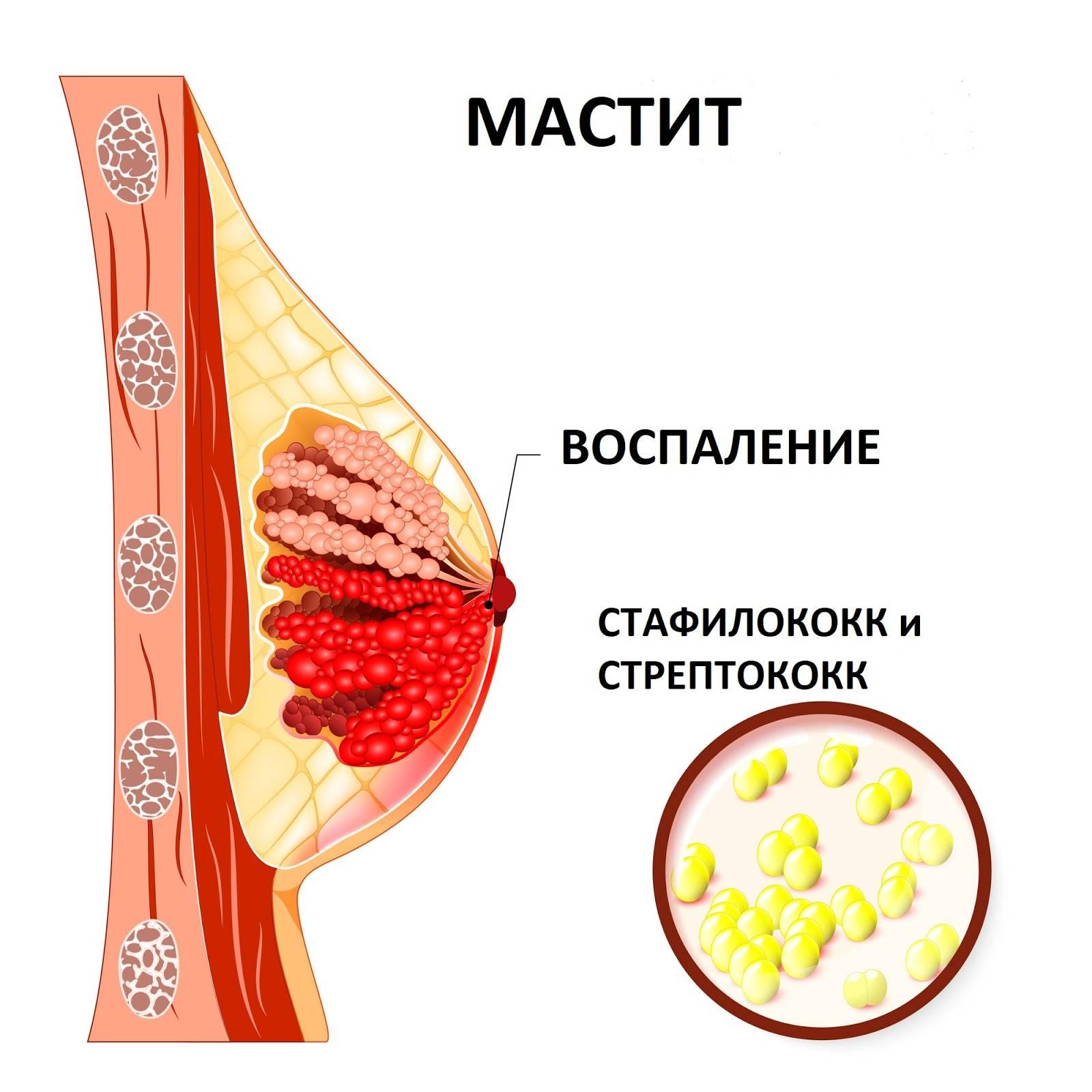 почему могут болеть груди