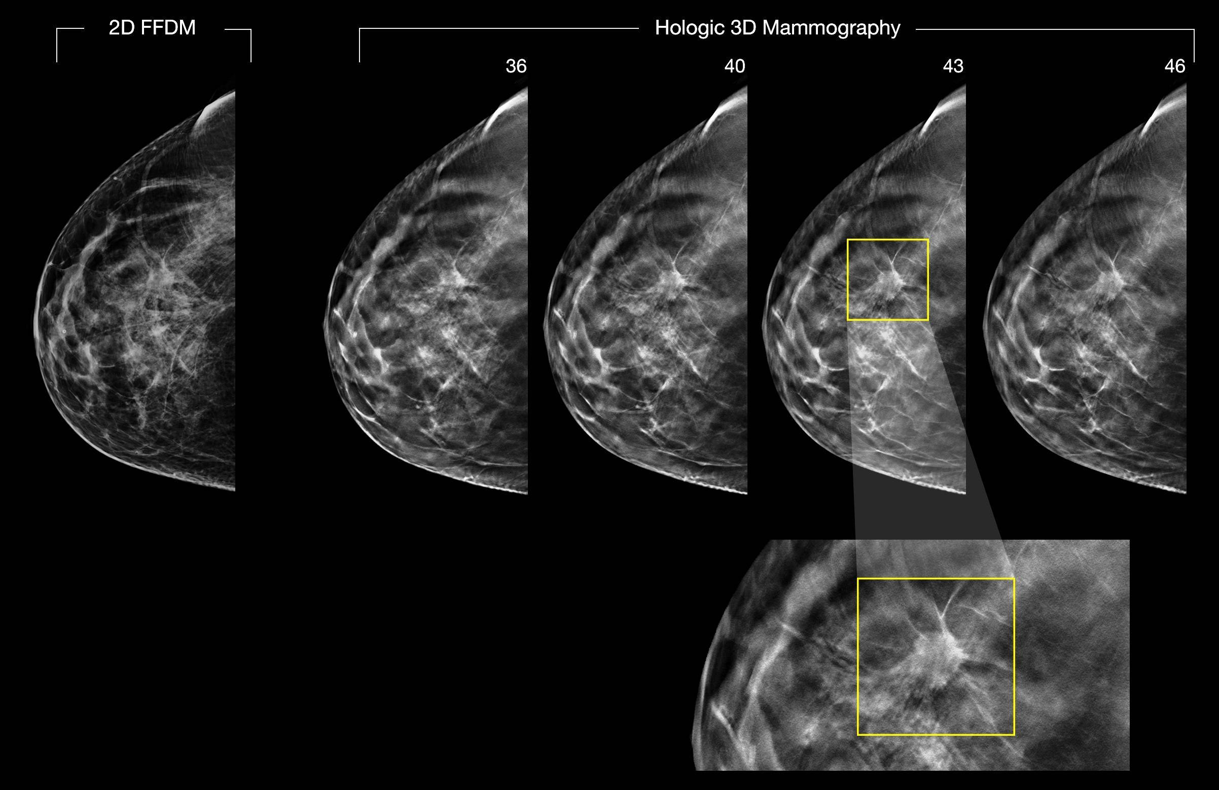 С какого возраста и как часто делают маммографию молочных желез?