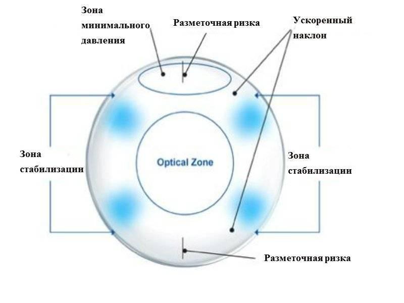 Советы по подбору линз при астигматизме. преимущества и недостатки средства коррекции зрения