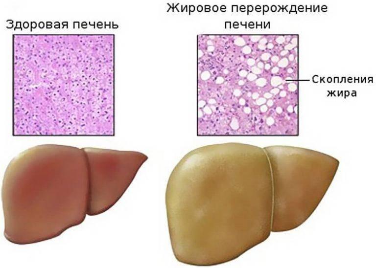 чем лечить гепатоз
