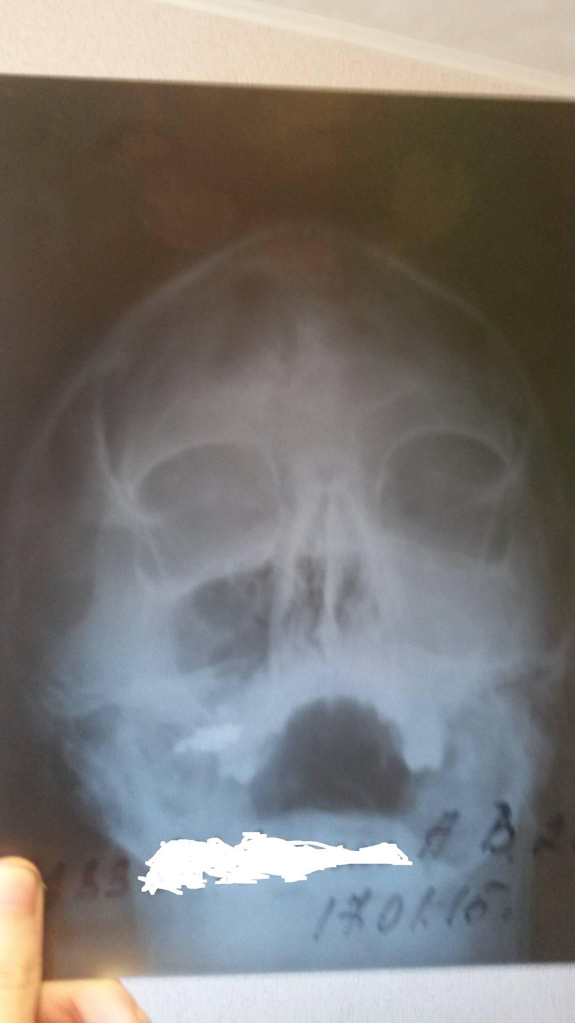 Все о проколе носа при гайморите: от показаний до последствий