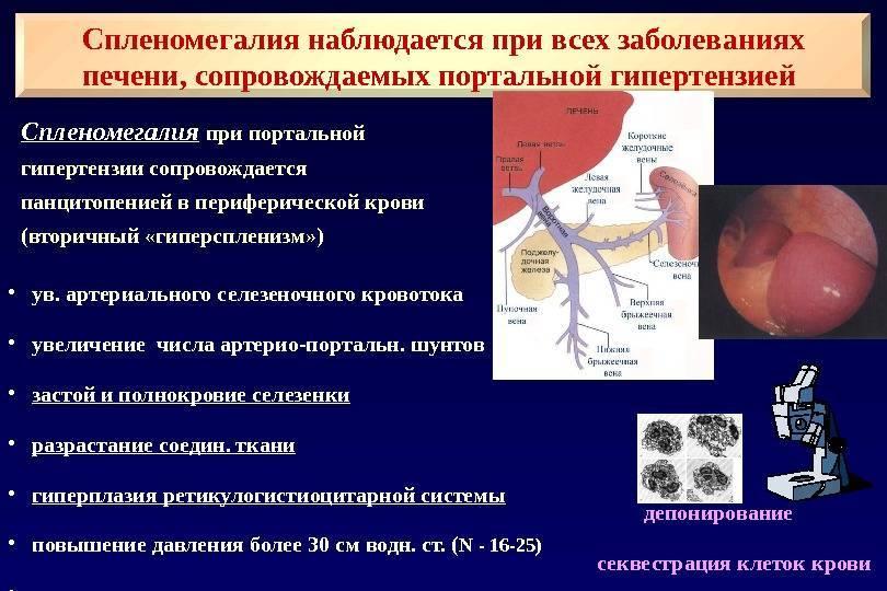 Признаки портальной гипертензии при циррозе печени и ее лечение