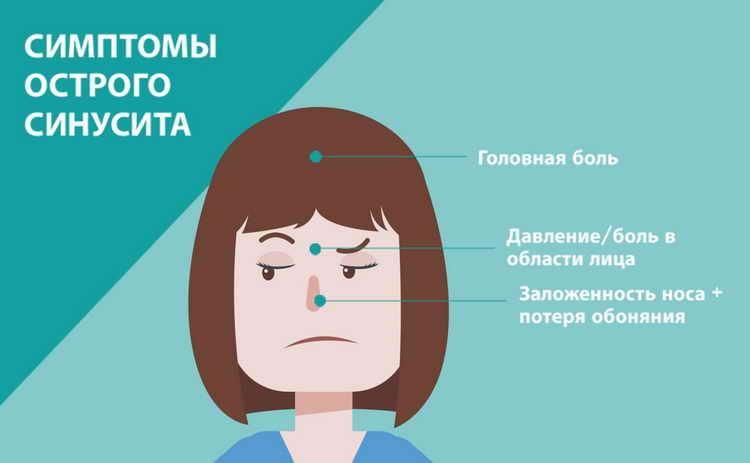 Сколько дней длится больничный при гайморите