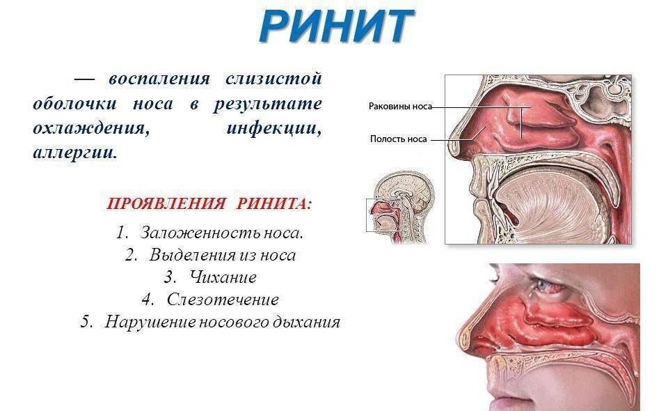 Почему из носа течет прозрачная вода и как это лечить