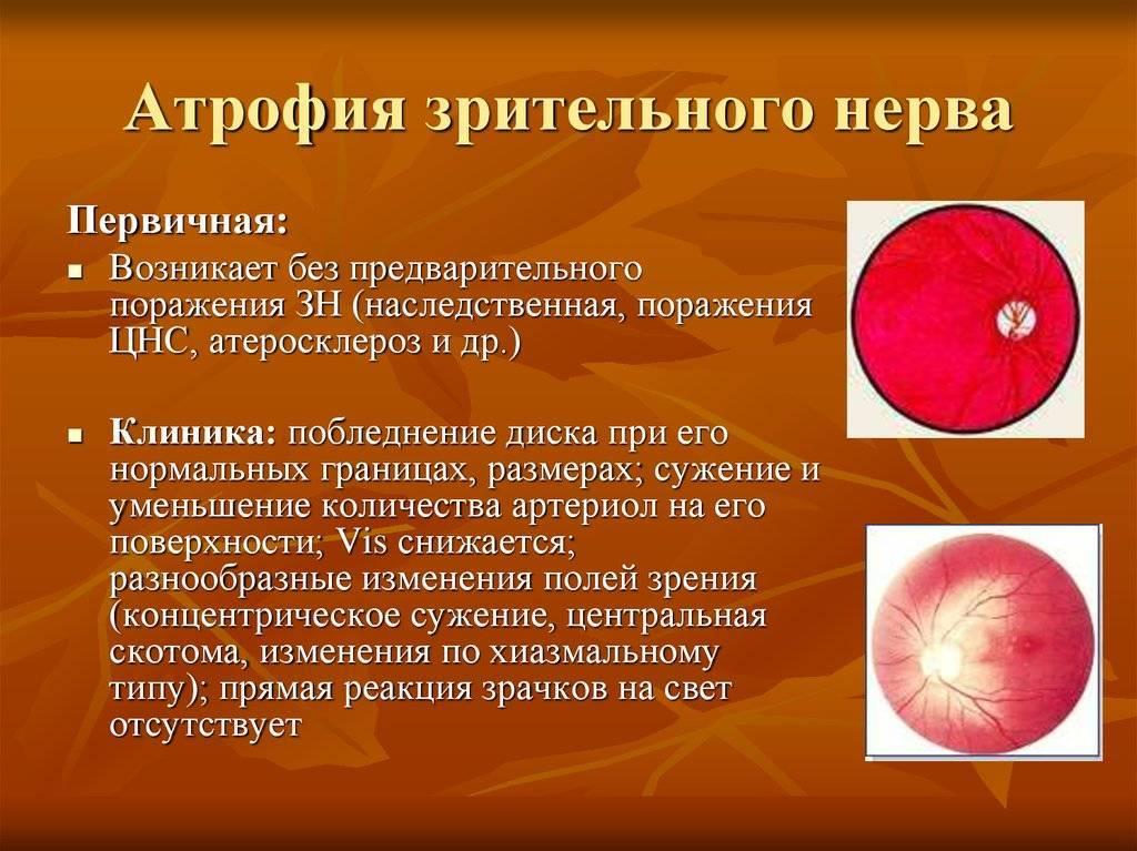 Атрофия зрительного нерва: симптомы и лечение. частичная атрофия зрительного нерва