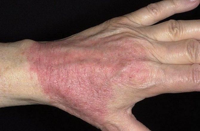 Зудящий дерматит