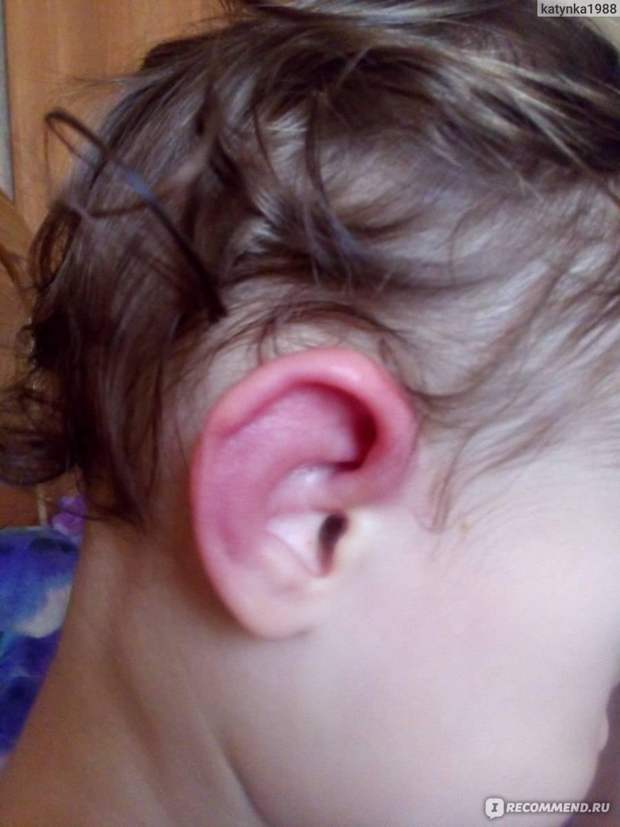 У ребенка опухли и покраснели уши — возможные причины