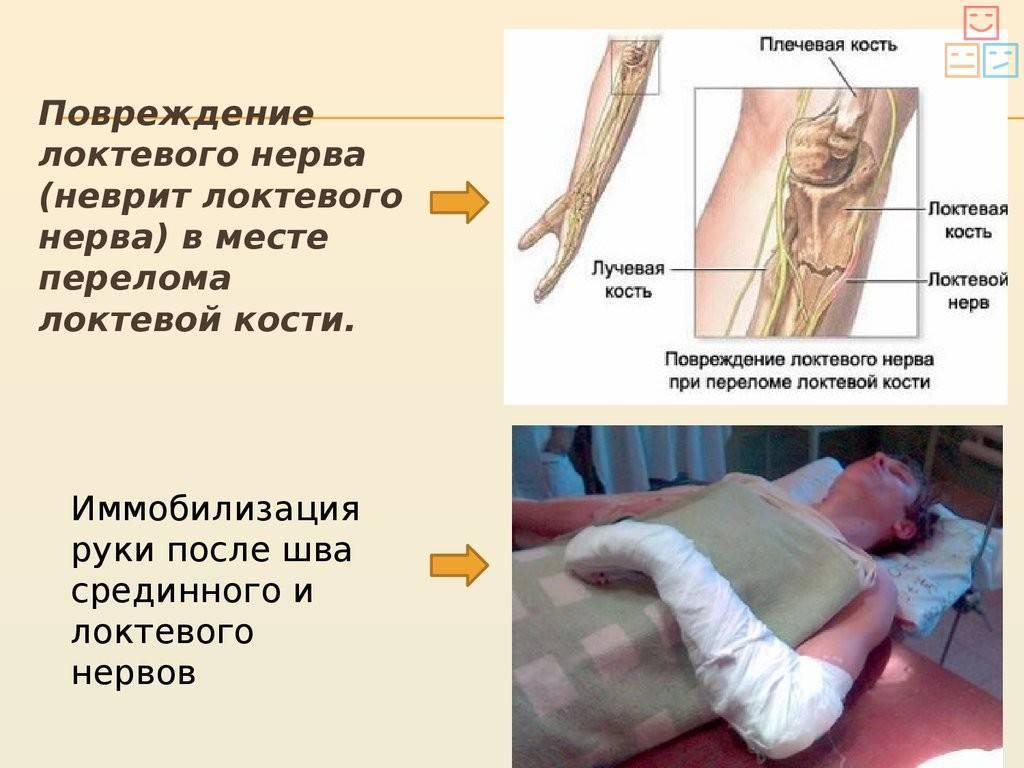 Симптомы неврита локтевого нерва и его лечение