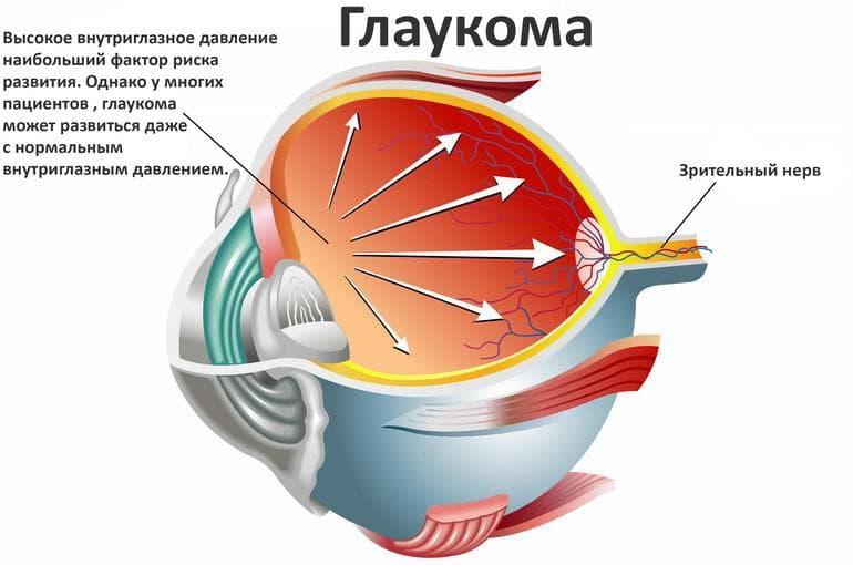 Причины, симптомы, особенности лечение и профилактика глаукомы