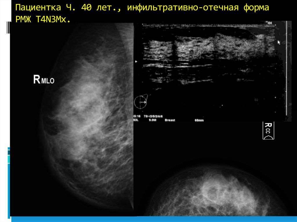 Степени злокачественности инфильтрирующей карциномы молочной железы