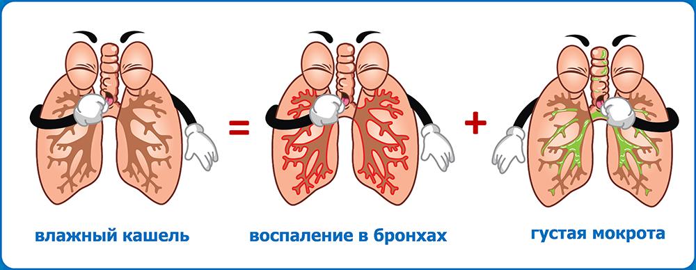 Чем лечить мокрый кашель у ребенка: без температуры и с ней, сиропы, ингаляции, лечение, что дать ребенку при мокром кашле