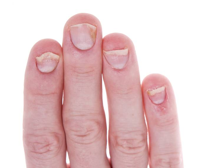 Псориаз на ногтях: особенности и уход