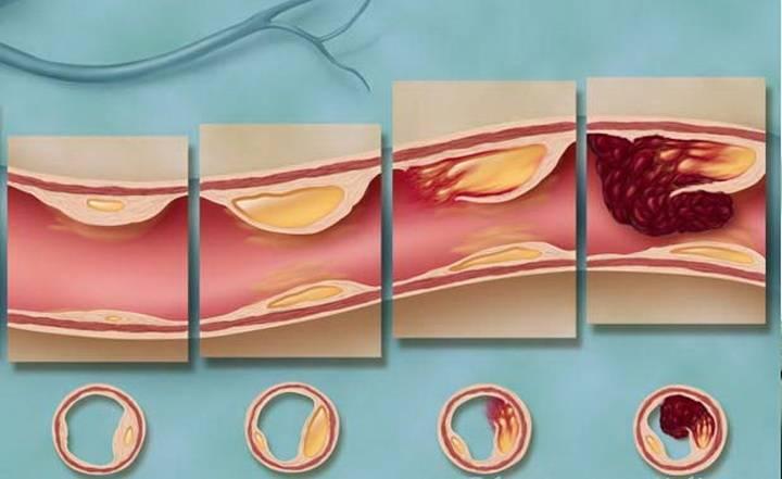 Начальные признаки атеросклероза: все про болезни сердца у беременных и детей