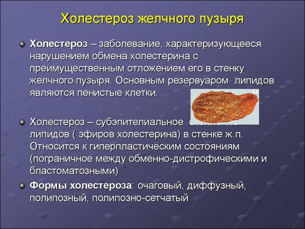 холестероз желчного пузыря лечение народными средствами