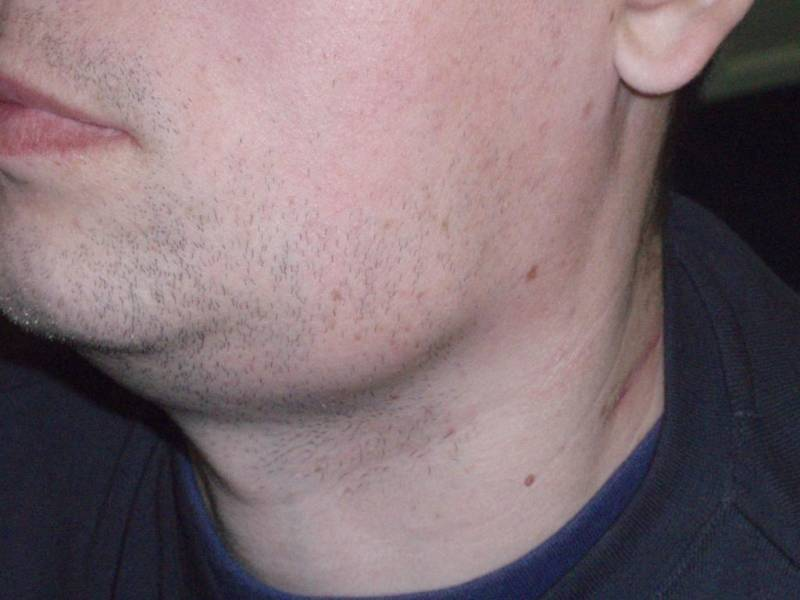 Воспаление шейных лимфоузлов при различных видах ангины