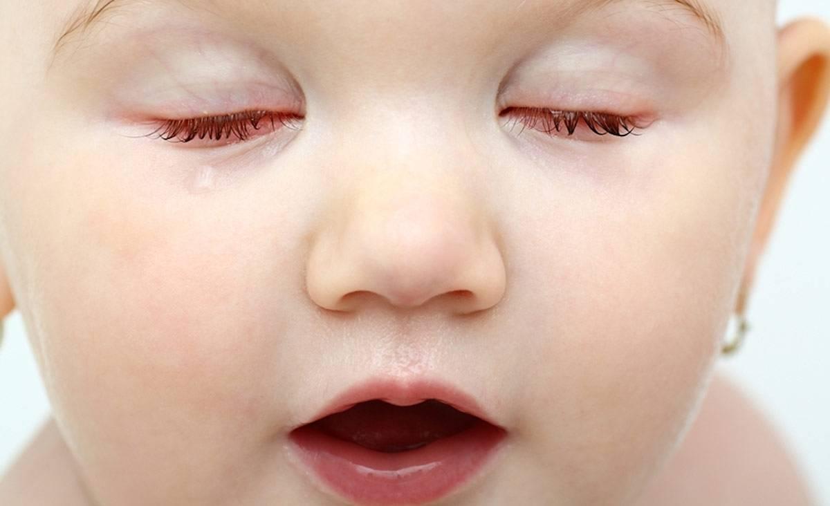 частое моргание глазами у взрослых причины лечение
