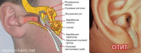 Болит горло, больно глотать, температуры нет и отдает в уши: лечение