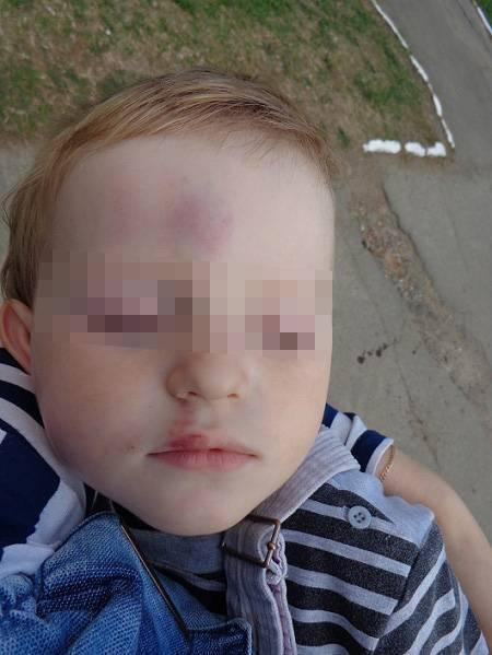 Травмы носа у детей – симптомы болезни, профилактика и лечение травм носа у детей, причины заболевания и его диагностика на eurolab
