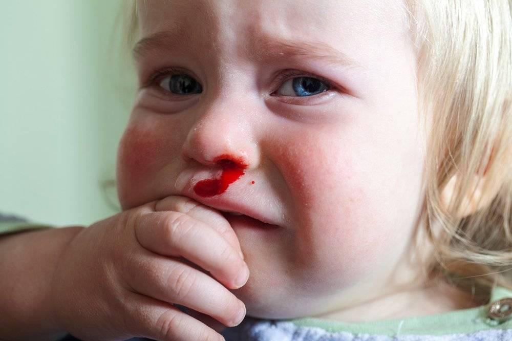 у ребенка 10 лет часто идет кровь из носа