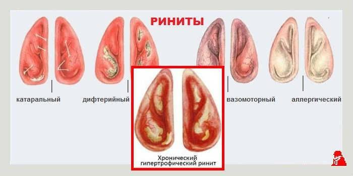 Симптомы и лечение гипертрофического ринита у взрослых