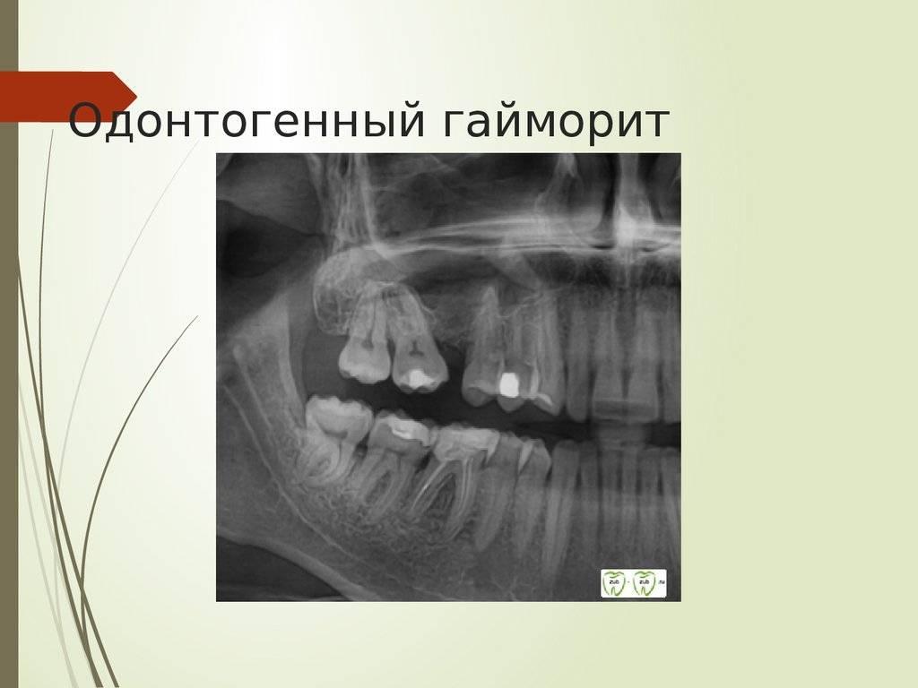 гайморит из за больного зуба