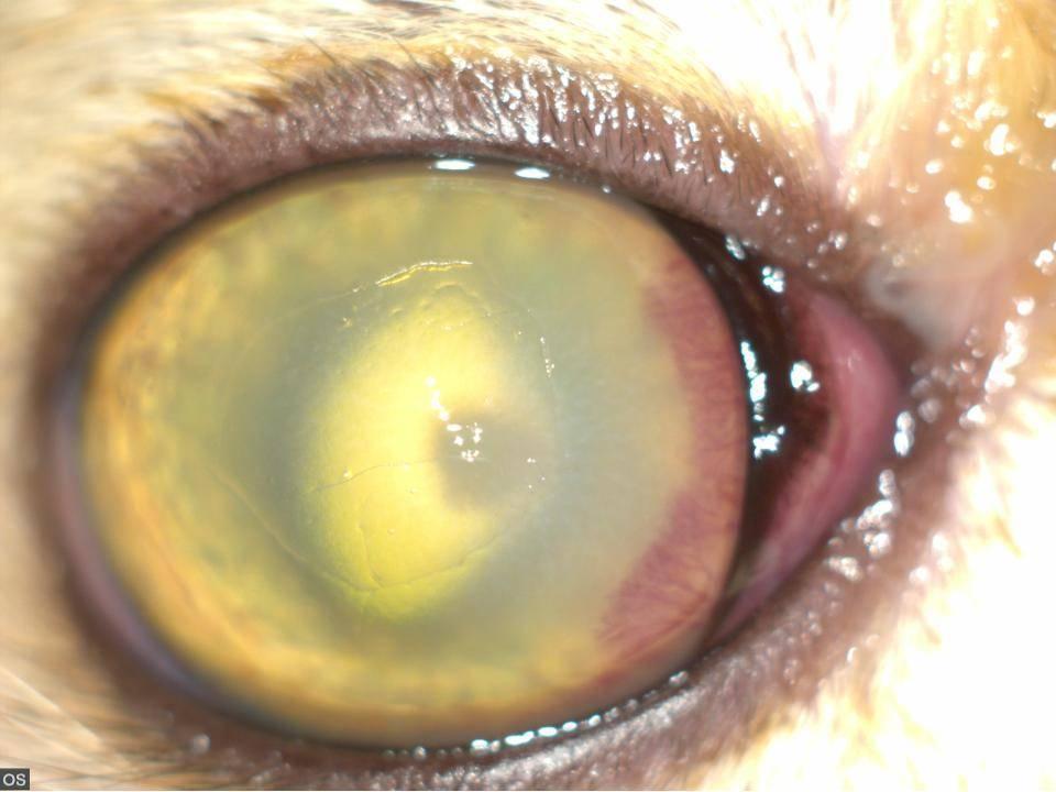 Гнойная язва роговицы глаза
