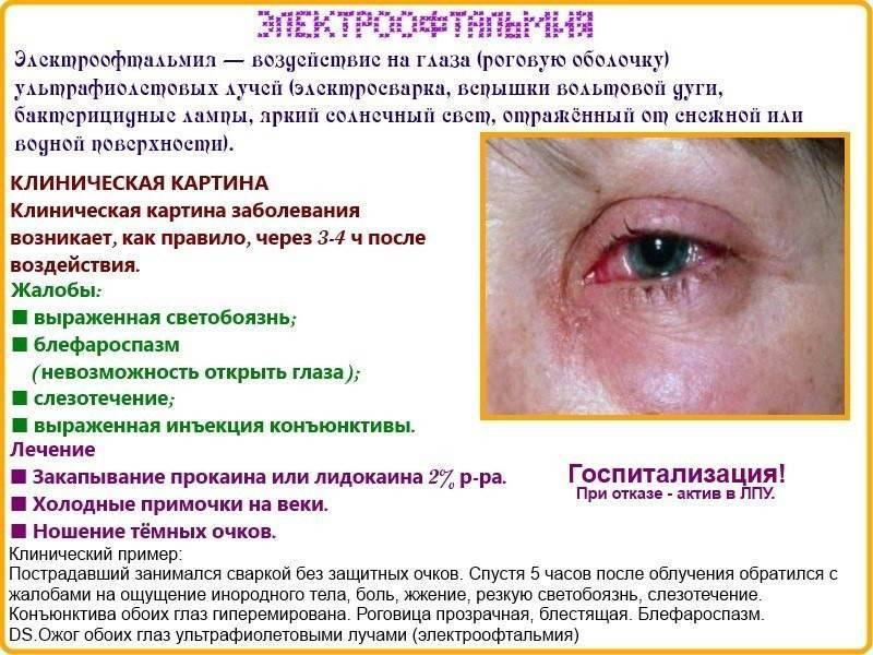 Что делать при ожоге глаз сваркой