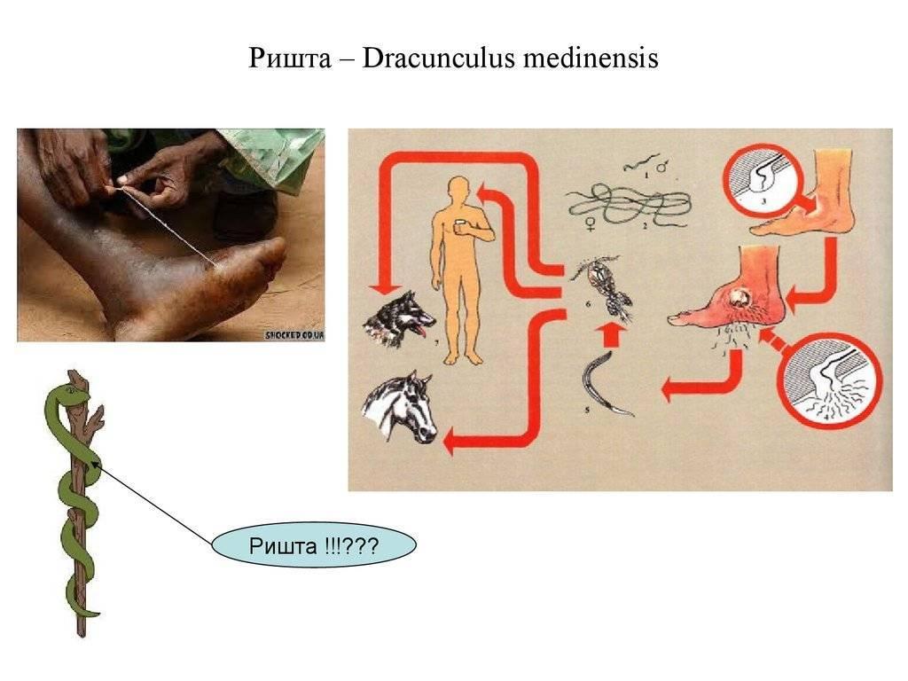 Симптомы и лечение дракункулеза: черви-паразиты ришты