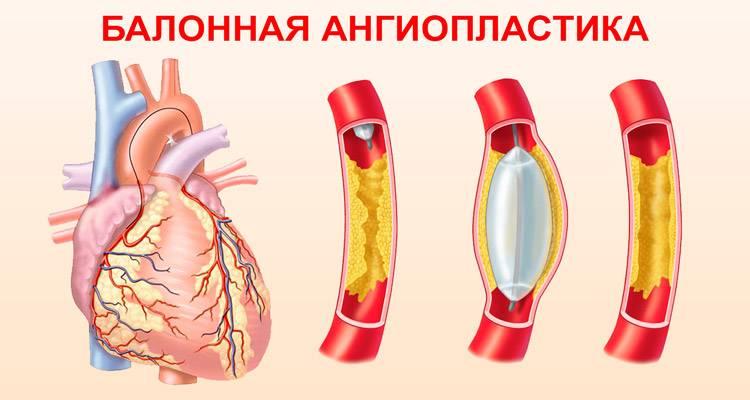чрескожная транслюминальная коронарная ангиопластика