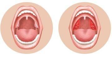 пупырышки на задней стенке горла у ребенка