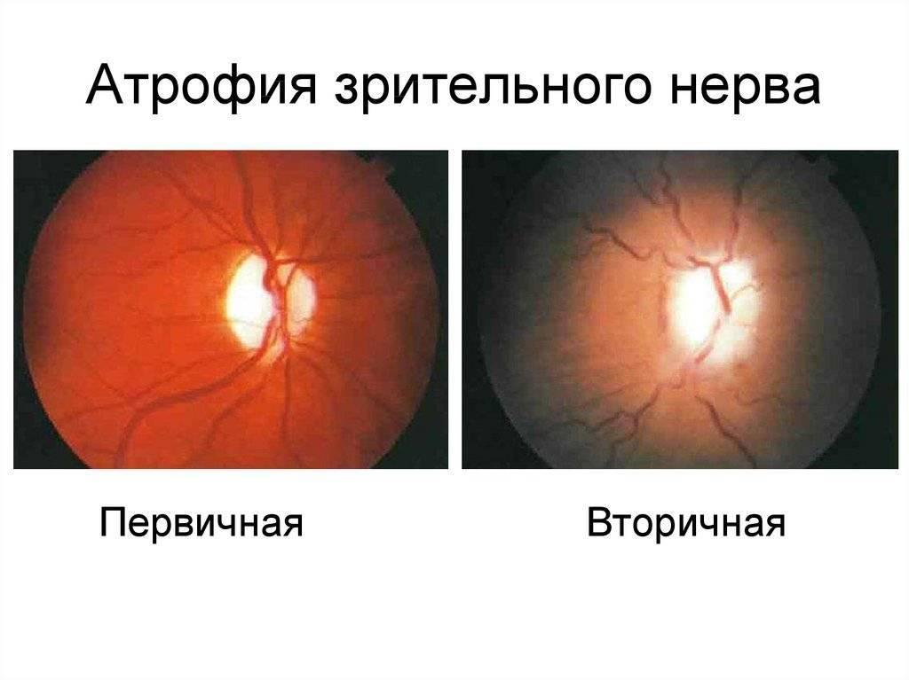 Атрофия зрительного нерва: что это, симптомы и лечение