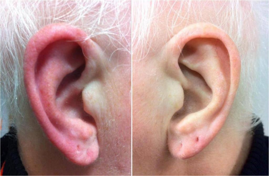почему болит хрящик уха