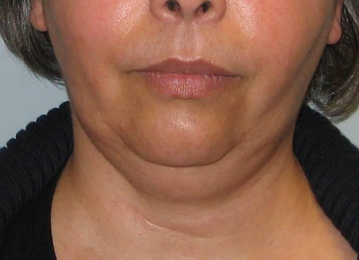 многоузловой зоб щитовидной железы 2 степени