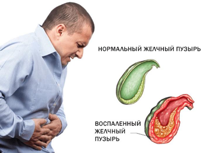 желчный пузырь симптомы лечение