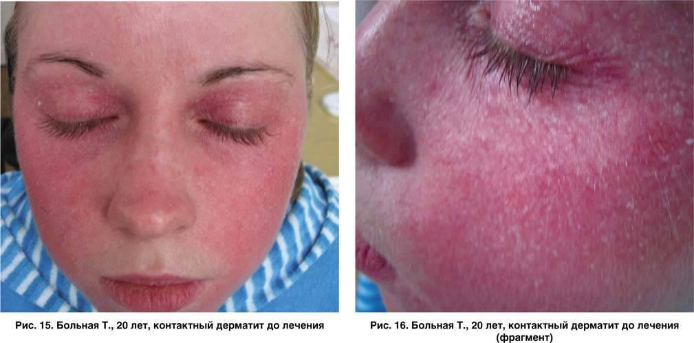 Солнечный дерматит: причины, симптомы, диагностика и лечение
