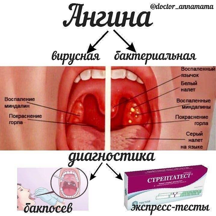 Течение лакунарной ангины у детей и взрослых – особенности ее лечения