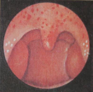 красные пятна на горле у ребенка