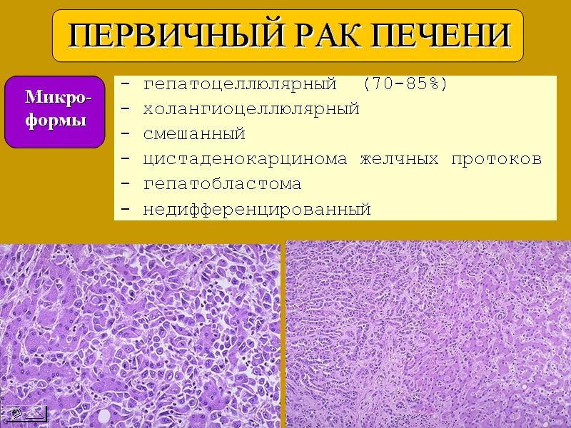 Карцинома печени: симптомы, прогноз и лечение