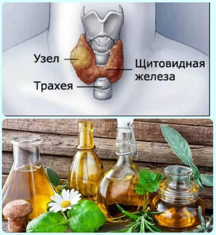 лечение узлов щитовидки народными средствами