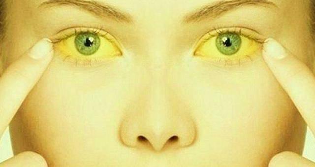 холестатическая желтуха что это такое