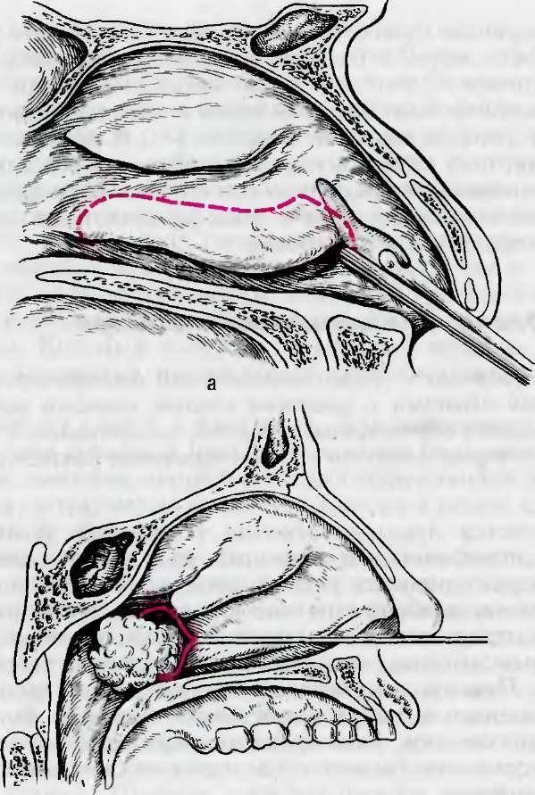 вазомоторный ринит как проходит операция