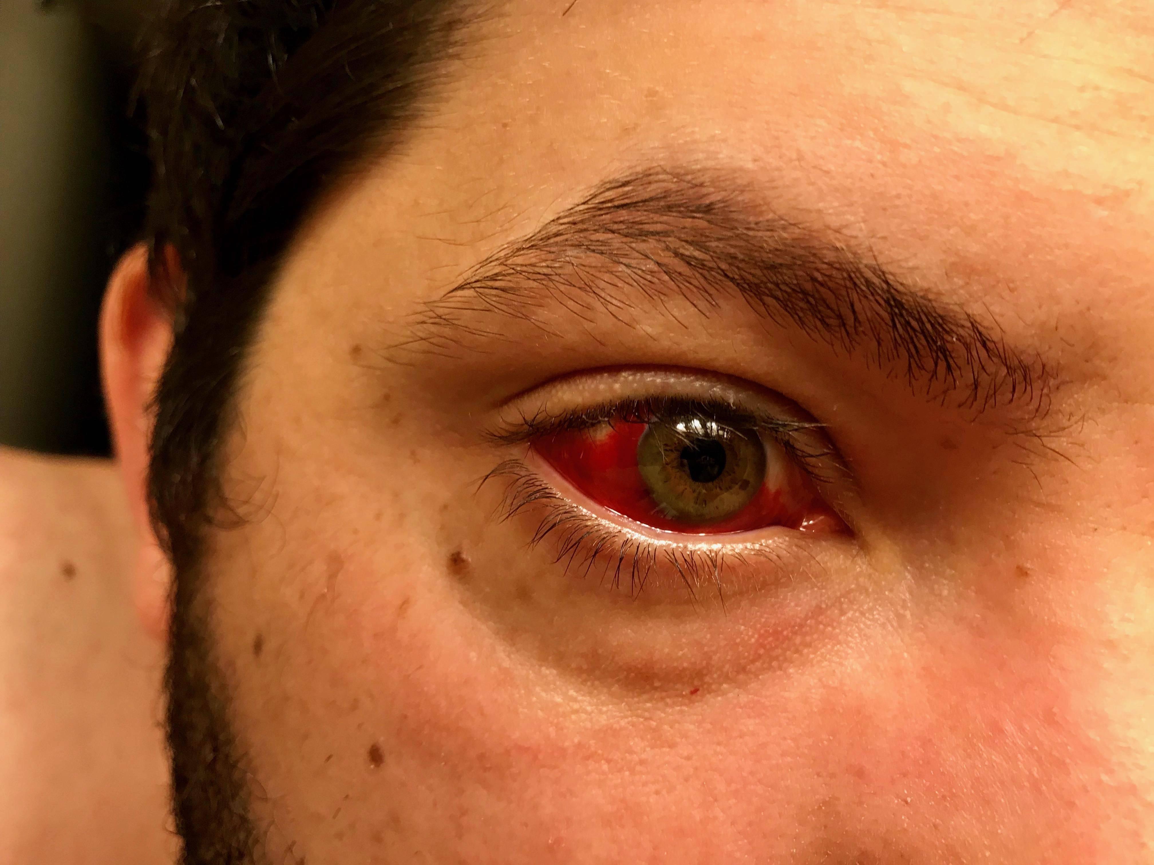 ушиб глаза лечение в домашних условиях