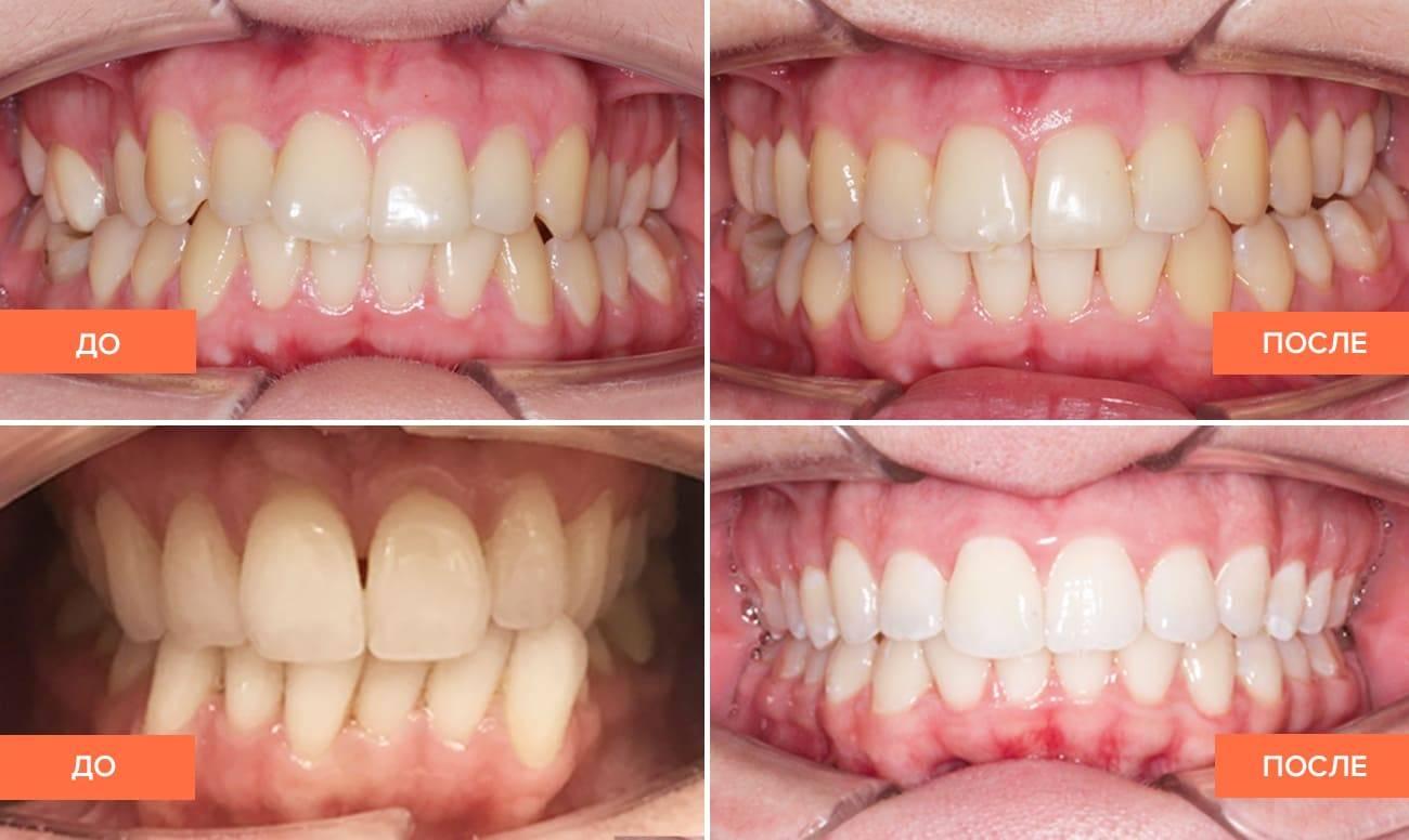 как можно выпрямить зубы