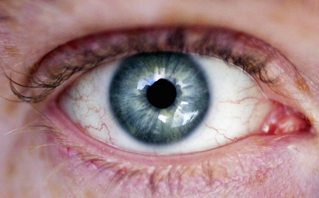 Почему от линз глаза красные и болят