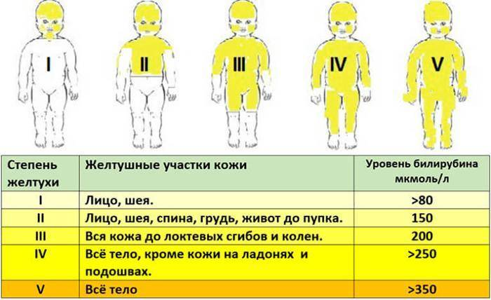 как лечить желтуху в домашних условиях