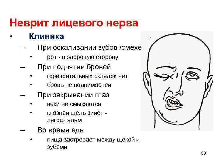 Неврит лицевого нерва, описание заболевания на портале medihost.ru