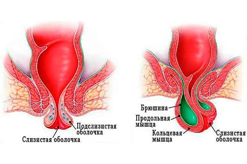 Геморрой во время беременности - современные методы лечения