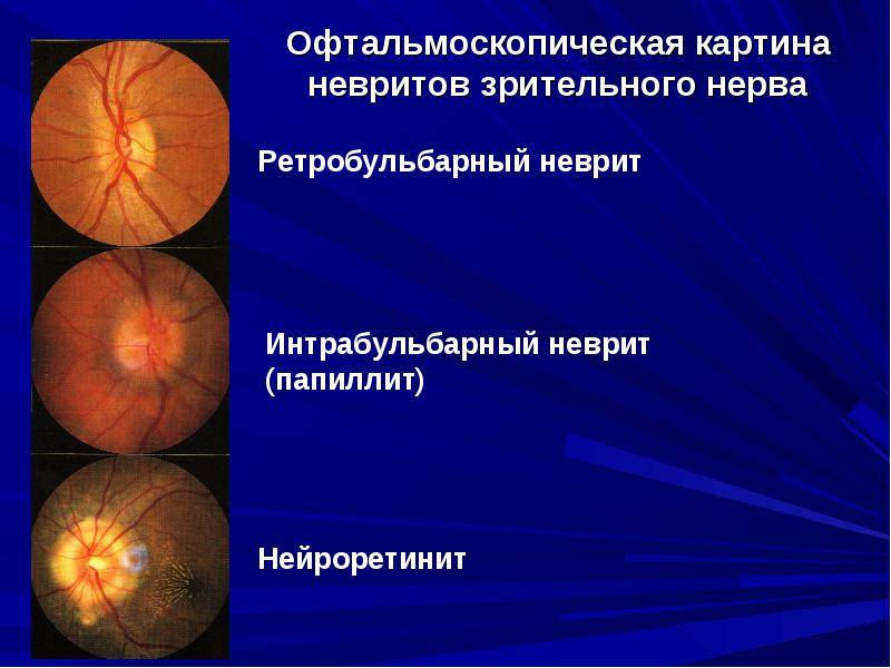 неврит зрительного нерва симптомы