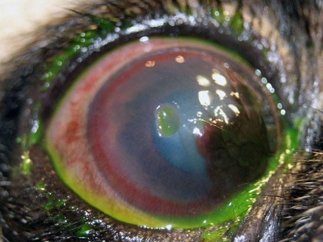 Язва роговицы глаза у человека – ползучая, гнойная, периферическая, краевая, прободная