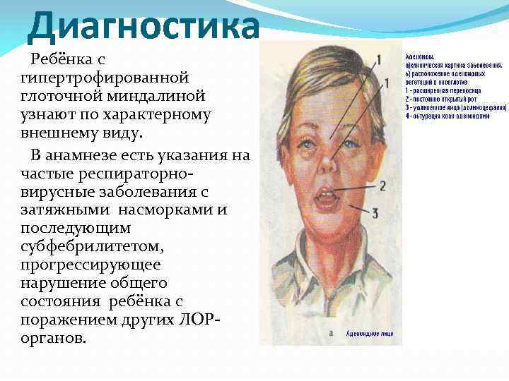 гипертрофия небных миндалин 1 степени